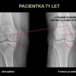 Trápí vás artróza kloubů? Jistě vás bude zajímat její léčba pomocí kmenových buněk.