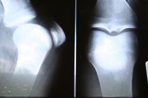 Klouby – artritida