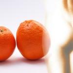 Celulitida, věc, která trápí většinu žen