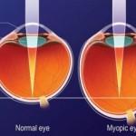 60% lidí na světě trpí oční vadou, ale pouze každý čtvrtý problém řeší
