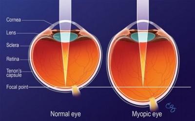 myopicke-oko