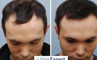 Účinnou metodou v boji proti vypadávání vlasů a alopecii je transplantace